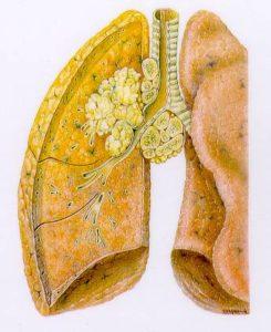 Carcinoma Polmonare da fumo